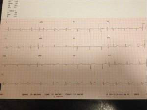 ECG taken in March 2015